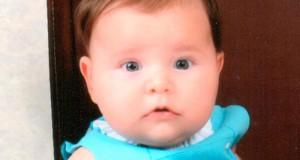 Manchas en la piel del bebé